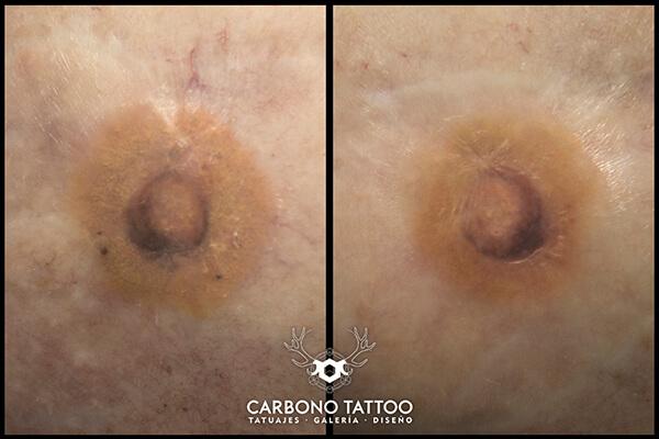 Tatuaje-pezones
